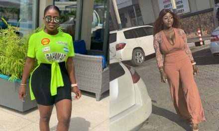 """""""God kept me alive for a reason"""" – Nigerian lady who survived failed plastic surgery"""